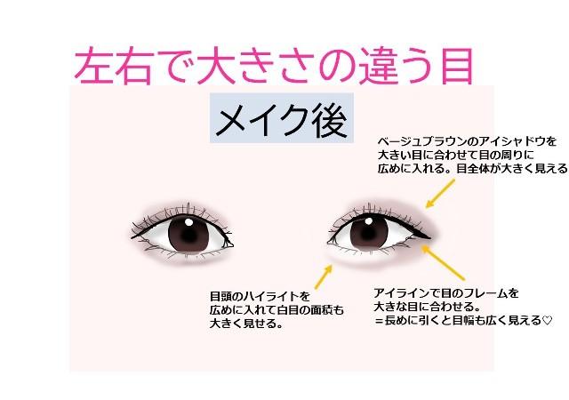 だけ 小さい 片目 片目だけ視力が悪いとは? |